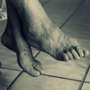 pies ancianos